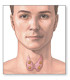 Why Thyroid Cancer is Considered A Not-So-Bad Cancer Type